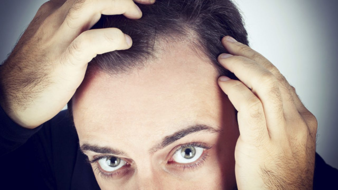 PSA: If You're Experiencing Hair Loss, Stay Away From the Internet