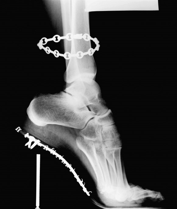 X-Ray, Van Cleef & Arpels, French Vogue, 1994 © Helmut Newton Estate / Maconochie Photography
